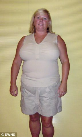 Weight Loss Gastric Band Hypnotherapy Case